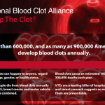 Blood Clot Prevention & Risk Factors